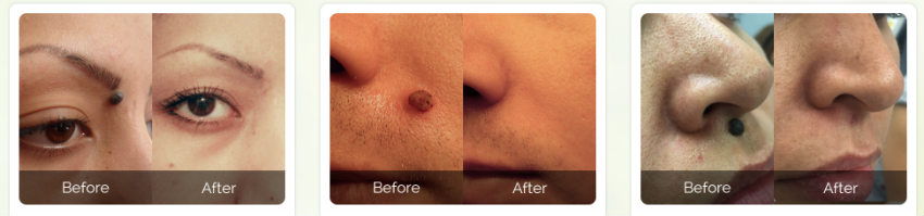 Skintology MD skin tag removal before and after