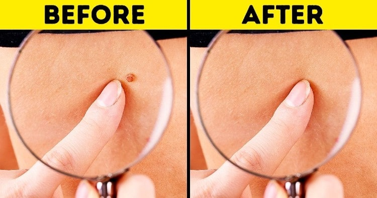 Removing Moles and Skin Tags
